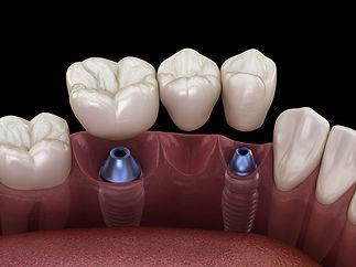Implantatbruecke_SHA.jpg