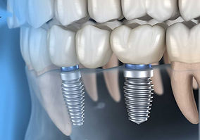 Versorgung-mit-Zahnimplantat_SHA.jpg