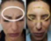 forehead-beforeandafter-01.jpg