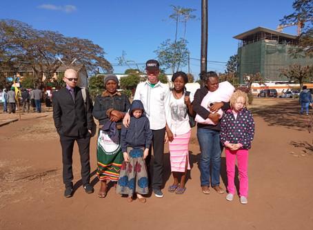 Kanimambo   Continuação das celebrações do Dia do Albinismo