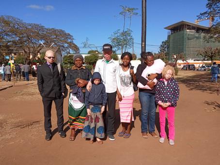 Kanimambo | Continuação das celebrações do Dia do Albinismo