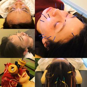 美容鍼灸で小顔になれる人