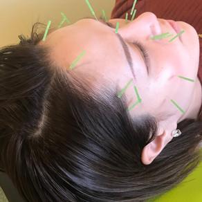 シワが出来る仕組みと、お顔に鍼を刺入するメリットについて1