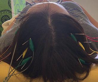 電気美容鍼