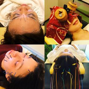 美容鍼と美容灸の違い