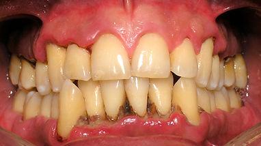 periodontitis03.jpg