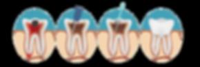 endodoncia-1024x347.png