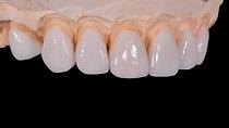 dental-2036945_1280.png
