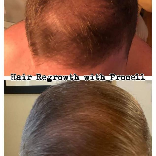 Hair regrowth Broken Arrow, OK