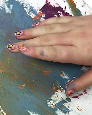 special needs hand.jpg
