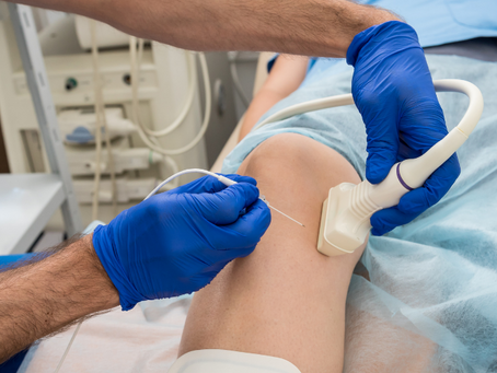 Radiofrequency Ablation (RFA) Treatments in South Florida