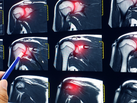 Rotator Cuff Injury Physicians in South Florida