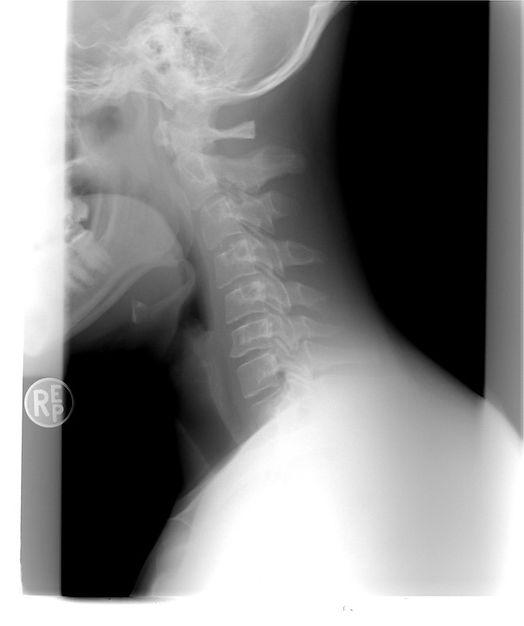 cervical-spine-1129431_960_720.jpg