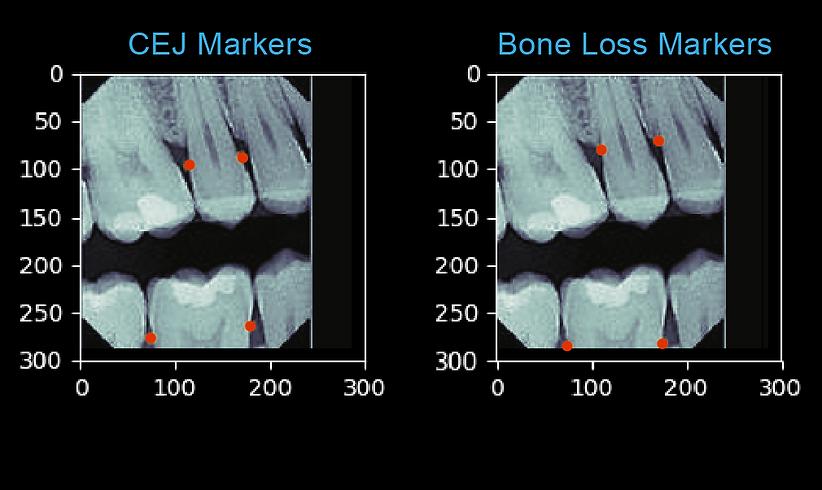 Perio Bone Loss Black BG.png