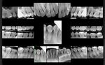 X-Ray Set