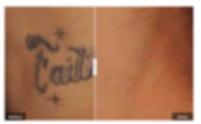 tattoo removal, laser treatment, no downtime, little pain