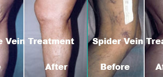 Varicose & Spider Veins - Can lead to blood clots, get checked today.