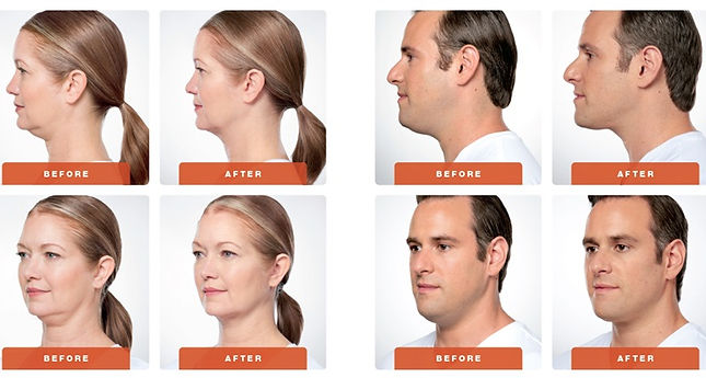 Before and After Pics of plastic surgery, double chin with Kybella