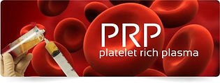 Platelet Rich plasma injections, reverse balding/thinning hair