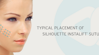InstaLift - A minimally invasive procedure providing instant results. Introducing suspension sutures
