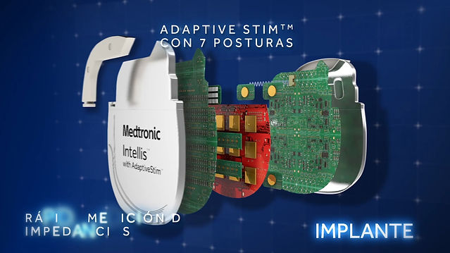 Medtronic Intellis