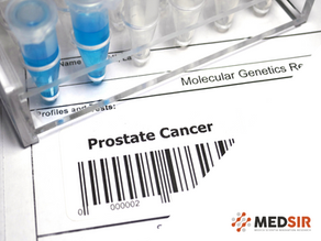 Announcing clinical trial with talazoparib for hormone-sensitive metastatic prostate cancer