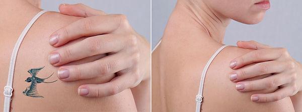 trattamento laser per rimozionetatuaggi- you Chirurgia plastica Roma
