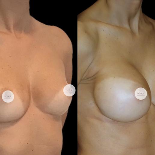 Mastoplastica Additiva- You Chirurgia Plastica