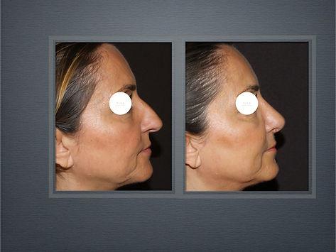 Rinoplastica- You Chirurgia Plastica Roma