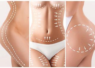 Liposuzione- You Chirurgia Plastica Roma