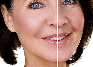 Lipofilling del volto- You chirurgia plastica Roma