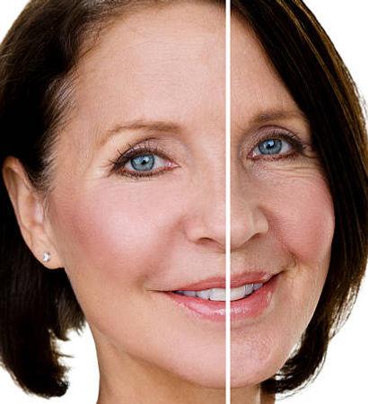 Lipofilling del volto - You chirurgia Plastica Roma