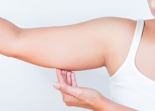 Lifting Braccia- You Chirurgia Plastica Roma