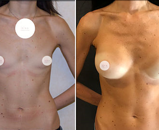 Mastoplastica Additiva- You Chirurgia Plastica png