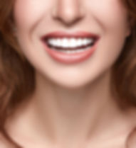 Red Head Smile.jpg