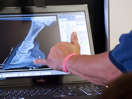 How To Use Self Adjusting Palmar Angles To Treat Heel Pain