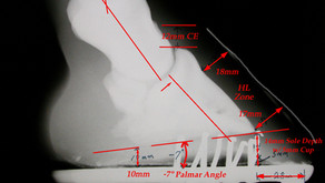"""Using the Radiographic """"Platinum"""" Standard to Improve Footcare"""