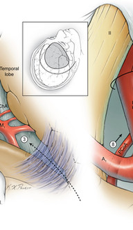 Posterior Communicating Artery Aneurysm Dissection Strategy