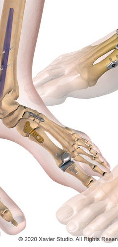 Integra® Foot and Ankle Orthopedic Systems