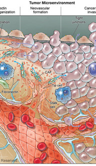 Brain Tumor Microenvironment