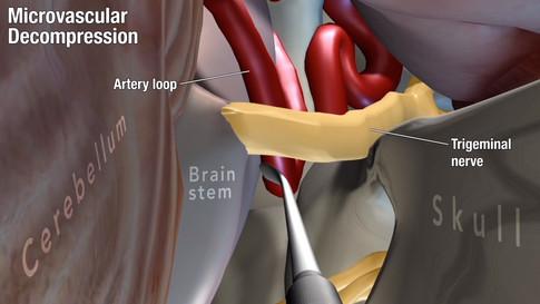 Trigeminal Neuralgia: Microvascular Decompression Treatment