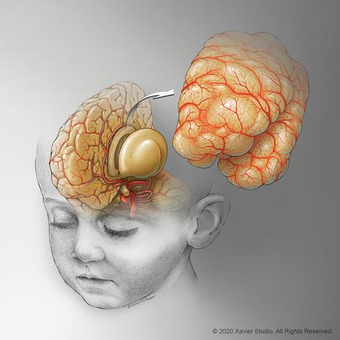 Hemispherectomy Surgery for Hemimegalencephaly
