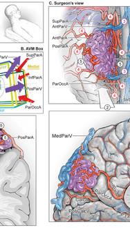 Paramedian Paroeto-Occipital AVM Resection