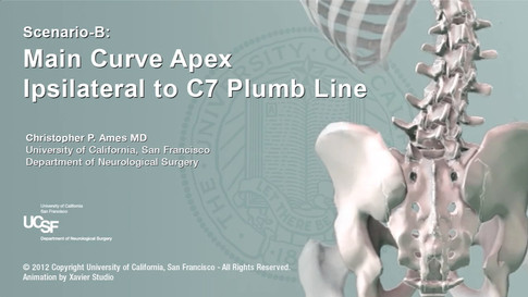Main Curve Location in a Thoracolumbar Scoliosis with Respect to C7 Plumb Line: Impacts on Surgical Correction Strategies