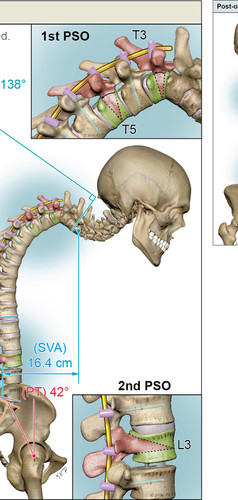 Multilevel Pedicle Subtraction Osteotomy