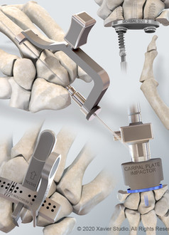 Integra® Freedom Wrist Arthroplasty System