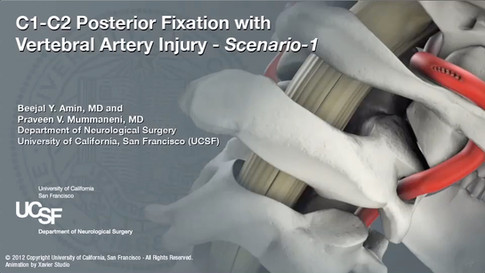 Vertebral Artery Injury Repair During C1-C2 Fixation Surgery