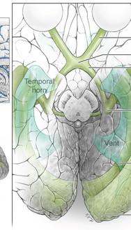 Parieto-Occipital AVM Microsurgical Anatomy