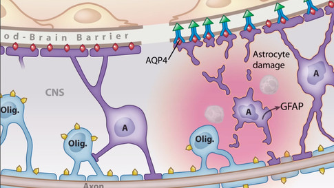 Potential Role of Antibodies to MOG and AQP4 in Opticospinal Inflammation