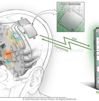 DBS Clinical Platform